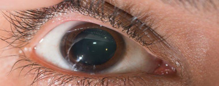 Ceratocone: hábito de coçar os olhos pode causar doença na córnea e prejudicar a visão